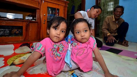 Parents of Indonesian siamese twins who crawl like 'spiders' wish to get job to raise their daughters happily