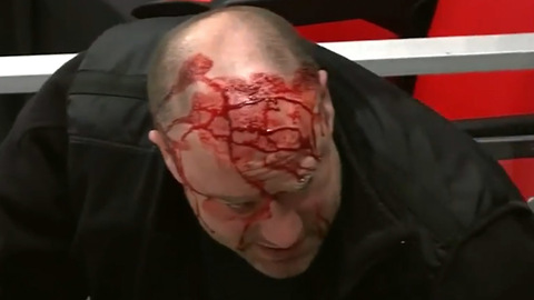 Sabres Cameraman GUSHES Blood After Taking a Hockey Puck to the Head
