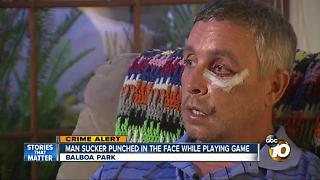 Man sucker punched in the face at Balboa Park