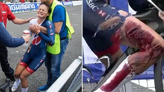 Cyclist Suffers NASTY Injury in Crash, Crosses Finish Line Anyway - Video