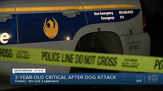 Two-year-old girl hospitalized after dog attack