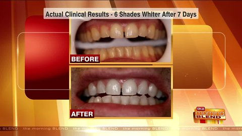 Boost Your Confidence with a Whiter Smile