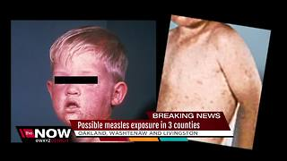 Possible measles exposure in three counties - Video