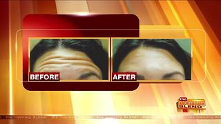 Treatments for a Natural, More Youthful Look - Video