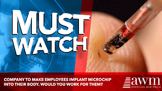 Company To Make Employees Implant Microchip Into Their Body. Would You Work For Them?