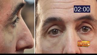 Say goodbye to wrinkles with Plexaderm - Video