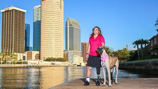 A woman and her service dog who both use prosthetic legs have the most amazing bond - Video