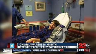Chiari Awareness Month - Video
