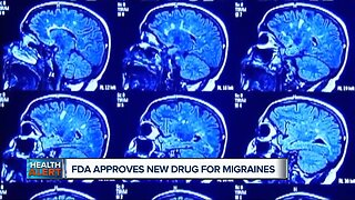 FDA approves new treatment for migraines
