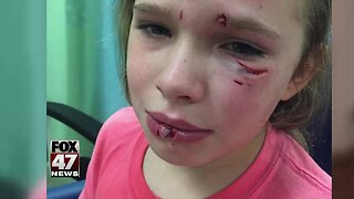 Family wants answers after alleged dog attack