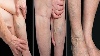 5 Reasons You Get Varicose Veins And How to Avoid It