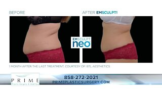 Dr. James Chao of Prime Plastic Surgery & Medical Spas talks body contouring and EmSculpt Neo