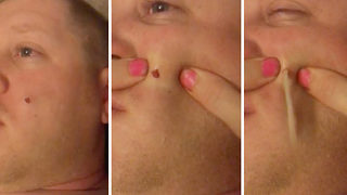 Stomach-churning moment wife pops husband's red spot - Video