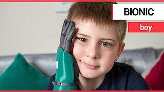 Eight-year-old boy is the world's youngest person fitted with bionic arm