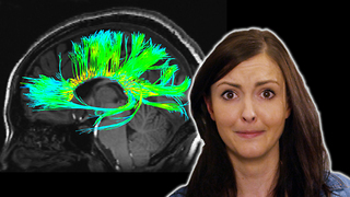 S2 Ep4: 4 Odd Things We've Seen in Your Brain - Video