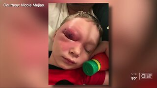 Florida boy gets infection on cruise