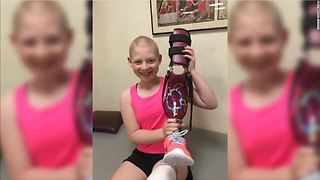 Backward leg gives young cancer survivor a second chance