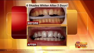 Start the New Year with a New Smile - Video