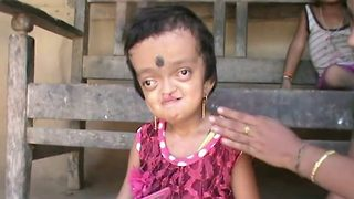 Six-year-old indian girl taunted as 'frog' hopes for surgery to look beautiful  - Video