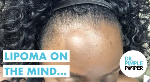 A Lipoma on the Mind... with Dr Pimple Popper