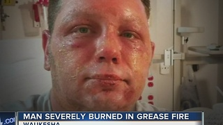 Deep fryer grease fire nearly kills father of three - Video