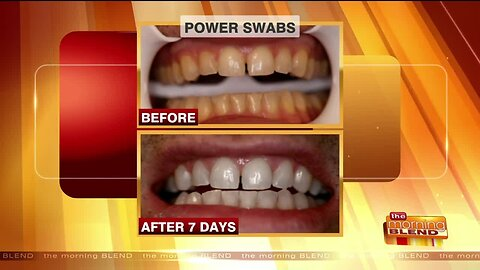 A Quick Routine to Get a Whiter, Brighter Smile