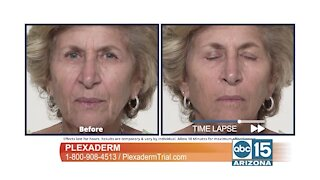 Look your best for loved ones and friends this holiday season with Plexaderm