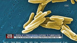 People at 3 Pasco schools exposed to Tuberculosis - Video
