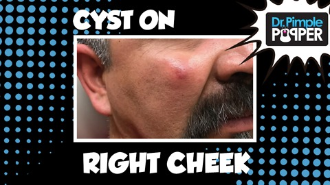 Cheek Cyst Albondiga! With Dr Pimple Popper