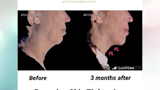 Look 10 years younger FAST with Renuvion at Advanced Image Med Spa