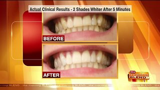 Brighten Your Smile in Just 5 Minutes a Day