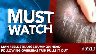 Man Feels Strange Bump On Head Following Overseas Trip, Pulls It Out - Video