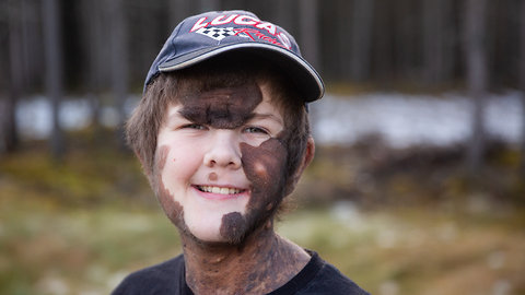 Boy With Giant Mole Beats The Bullies | BORN DIFFERENT