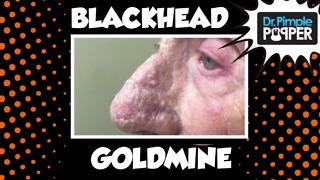 Dr Pimple Popper: A Goldmine of Blackhead & Whitehead Extractions - Video
