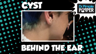 A Behind the Ear Cyst Squeeze - Video