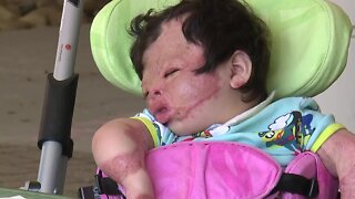 'Miracle baby' who survived fire, severe burns finally goes home