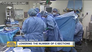 Cleveland Clinic working to reverse rising rates of cesarean sections