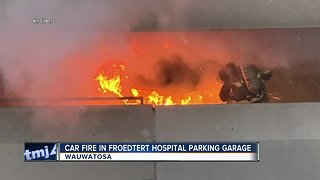 Froedtert Hospital parking garage fire under investigation