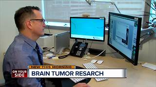Cincinnati doctor trying new imaging technique for children with brain tumors - Video