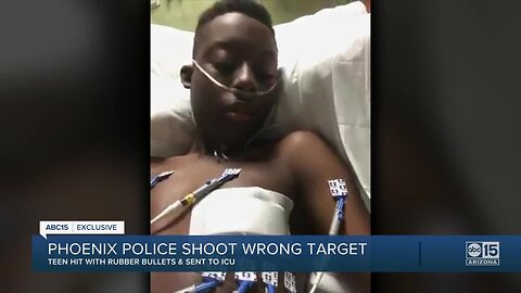 Valley teen in hospital after being misidentified by Phoenix police as a suspect in armed robbery