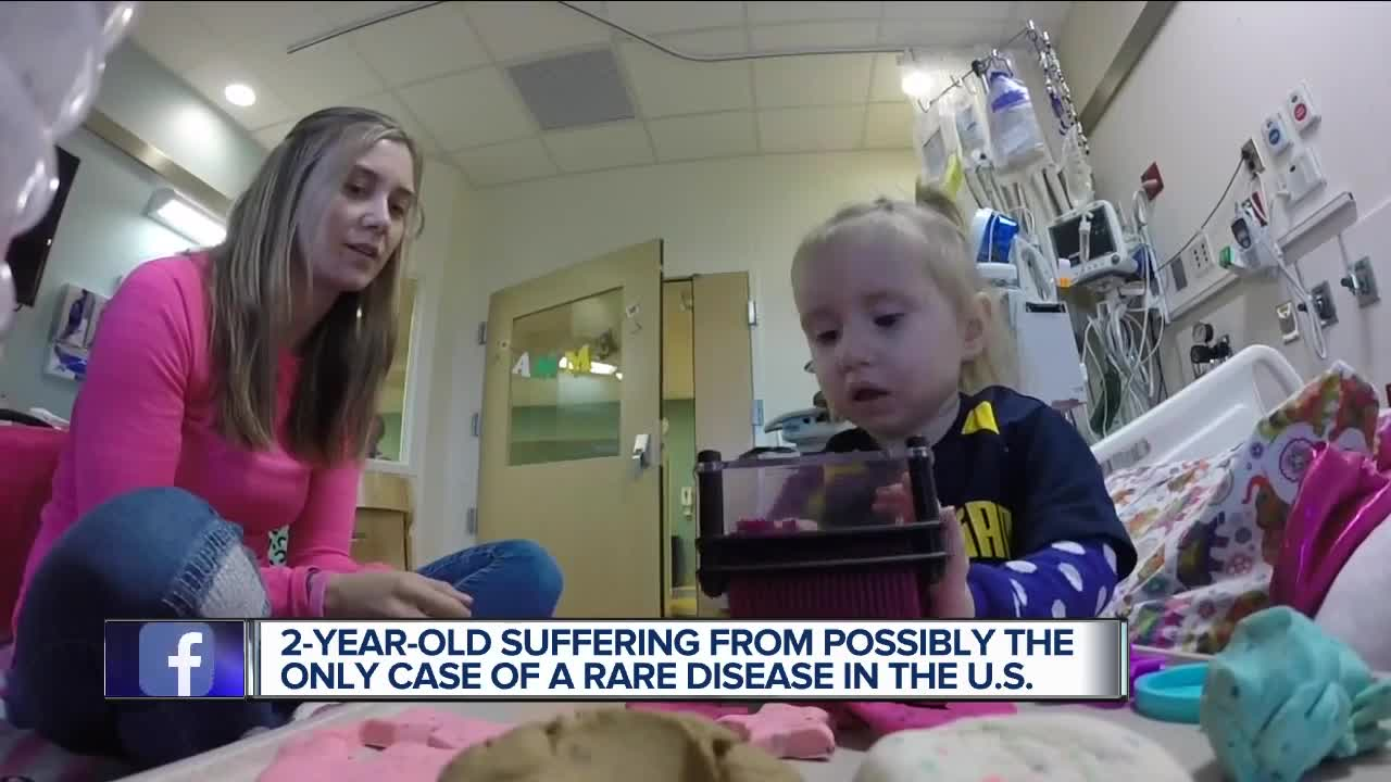 Metro Detroit family fears 2-year-old with very rare disease will never  have normal life