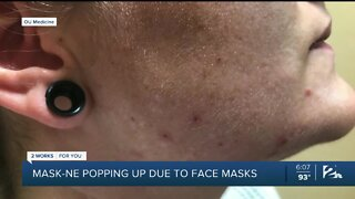 'Maskne' popping up due to face masks