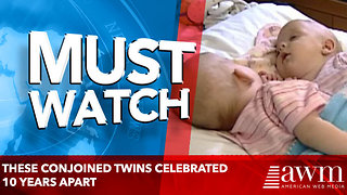 These Conjoined Twins Celebrated 10 Years Apart - Video