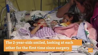 Formerly conjoined twin girls see each other for the first time since separation - Video