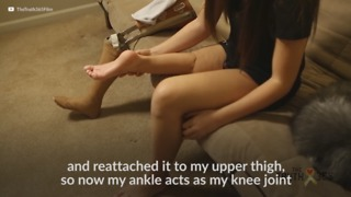 "Dancer With ""Rotationplasty"" Surgery - Video"