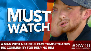 A man with a painful face tumor thanks his community for helping him - Video
