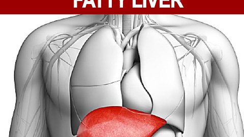 6 Natural Foods To Say Goodbye To Fatty Liver
