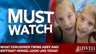 What Conjoined Twins Abby And Brittany Hensel Look Like Today - Video