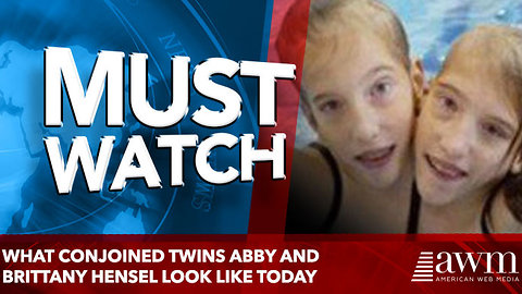 What Conjoined Twins Abby And Brittany Hensel Look Like Today