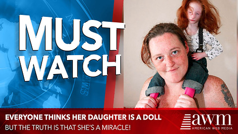 People All Over Think She's A Doll, But The Truth Mom Reveals Is A Heartbreaking Miracle